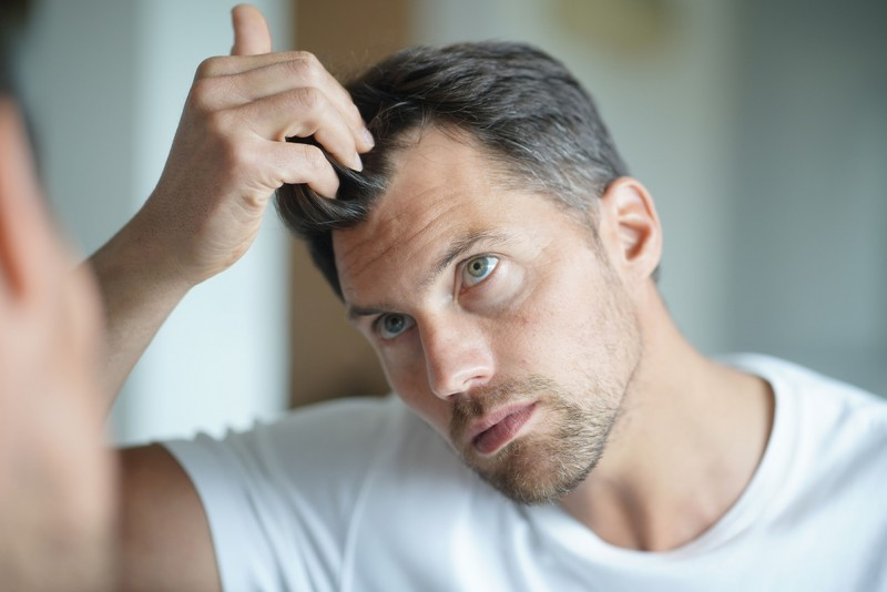 https://www.skinthings.de/media/image/4d/04/af/Skinthings_Hair_Mann-mit-Haarausfall_AdobeStock_294362524ynO6mJwGa0lya.jpg